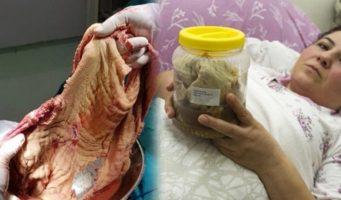 Врачи после операции оставили в животе пациентки почти 2 кг марли