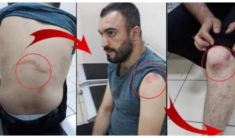 Полицейский, которому не подшили брюки, избил портного и сдал полиции, обвинив в «оскорблении президента»