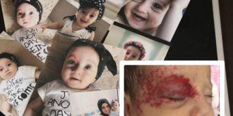 Суд отказал маленькой Авшин проходить лечение на свободе