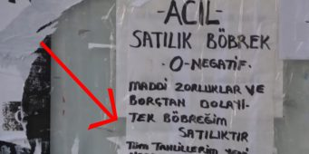 Объявление о продаже почки в Стамбуле!