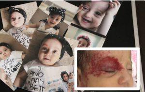 Мать и ребенка, страдающего от опухоли, не выпускают на свободу