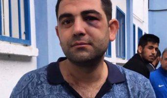 Мужчину, направлявшегося на футбольный матч, избили из-за его курдского происхождения