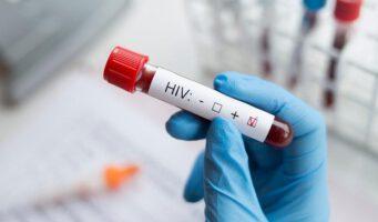 В Турции случаи СПИДа увеличились на 465 процентов