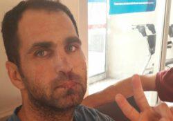 Бывшего учителя избили в тюрьме за сидячую акцию протеста