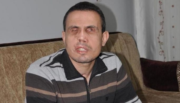 Бывшего офицера полиции-инвалида подвергли унизительному голому досмотру в тюрьме