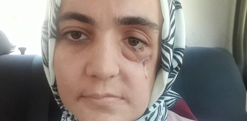 Издевательства над онкобольной Айше Оздоган: Институт судебной медицины Стамбула снова запросил подтверждение, что женщина больна раком